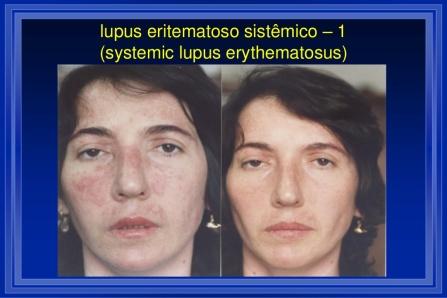 cicero-galli-coimbra-vitamina-d-no-tratamento-de-esclerose-mltipla-2-1024