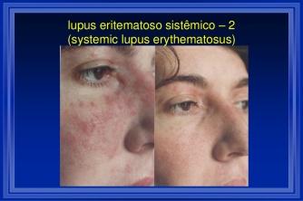 cicero-galli-coimbra-vitamina-d-no-tratamento-de-esclerose-mltipla-3-1024
