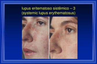 cicero-galli-coimbra-vitamina-d-no-tratamento-de-esclerose-mltipla-4-1024