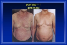cicero-galli-coimbra-vitamina-d-no-tratamento-de-esclerose-mltipla-5-1024
