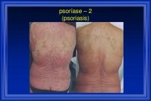 cicero-galli-coimbra-vitamina-d-no-tratamento-de-esclerose-mltipla-6-1024